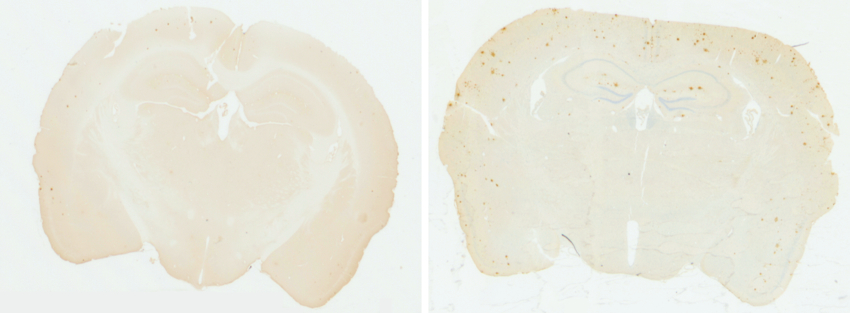 Healthy brain vs brain with A-beta plaques – photo courtesy of Jaime Ross